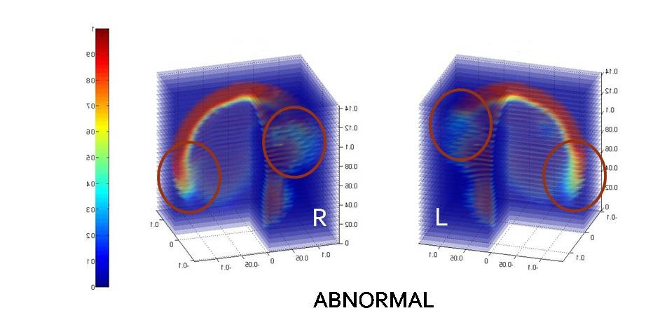 ECVT image of abnormal brain activity of a patient suffered from brain tumor indicated by the MRI image.