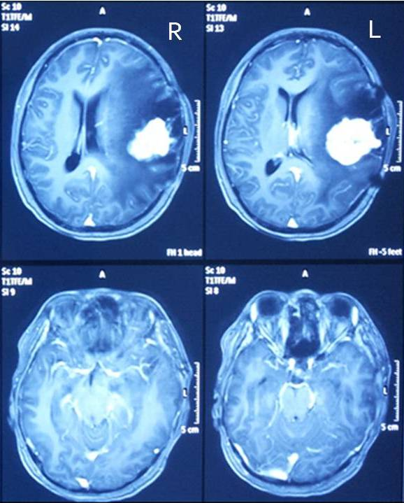 ECVT image is showing low electrical activities of the brain on both the left (especially) and right frontal regions of the brain that are mainly related to visual functions, and both right (especially) and left cerebellum that are related to motoric functions.