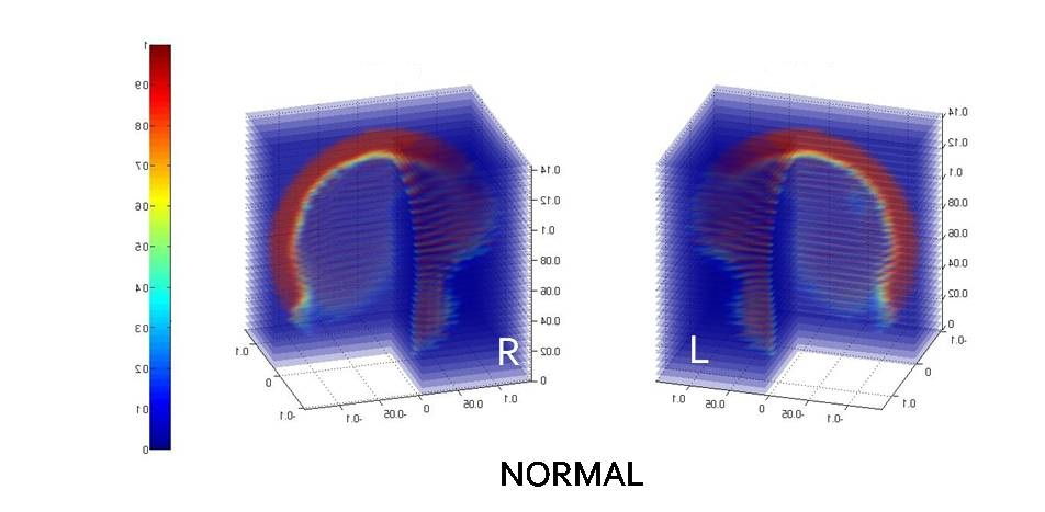 ECVT image of normal brain activity showing high electrical activity on the whole cortical surface of the brain.